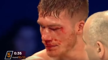 Damaged: Nick Blackwell's injuries during his fight against Chris Eubank Jnr.