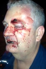 Queensland Ambulance Service paramedic Brad Johnson suffered cuts, bruises and a black eye during an assault while on the job.