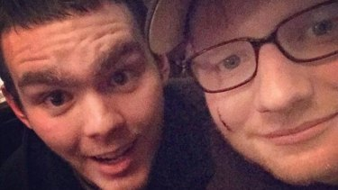 A photo posted on Twitter shows Ed Sheeran's facial cut as he poses with a fan.