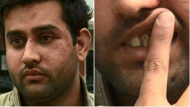 Cab driver Akbar Ali's two broken teeth.