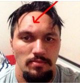 Jordan Rapana posted a picture on social media last year showing his indented skull.