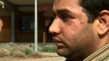 Cab driver Akbar Ali was allegedly assaulted by four teenagers who he says refused to pay a fare.