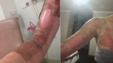 Burns suffered by Danika Jones in Perth after a her Thermomix allegedly burst open when in use in March this year.