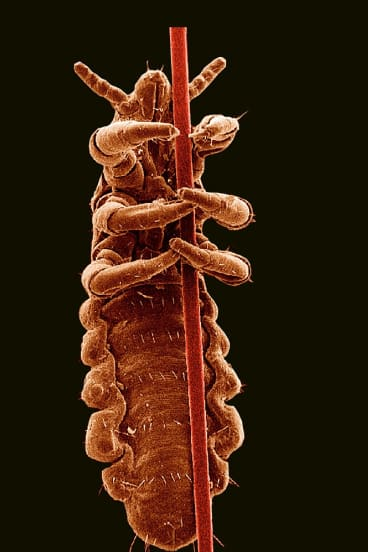 Head lice treatments are among the growing number of products that contain pyrethroid insecticides.