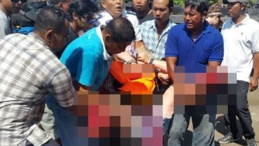 An unidentified woman who was severely injured during the boat crash in Bali.