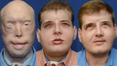 Mississippi firefighter Patrick Hardison underwent a full face transplant after being burnt in the line of duty in 2001. From left to right: Pre-operative in August 2014, Post-operative in November 2015, Post-operative in August 2016.