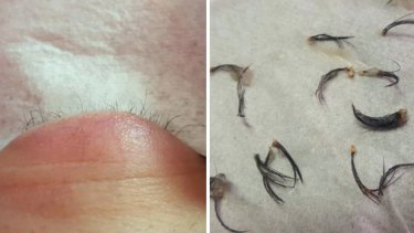 The woman was left with no lashes.