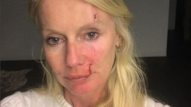 Shari Lea Hitchcock posted a photograph on Instagram, claiming she was assaulted.