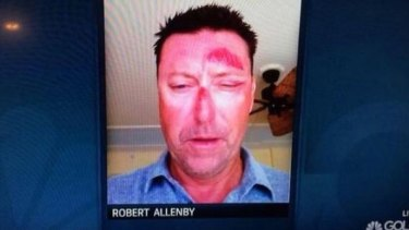Robert Allenby posted an image of his battered face on Twitter in January.