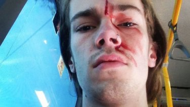 Sean Foster claims he was attacked while trying to stop another man removing rainbow 'Vote Yes' posters from a bus stop in Brisbane.
