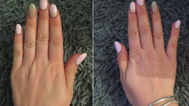 """The """"smartphone pinky"""" (shown right) might not be the injury some Twitter users are making out."""