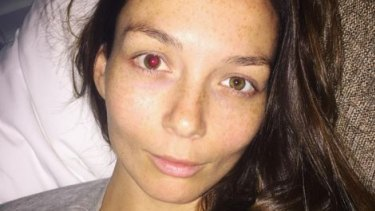 First world problem: Ricki-Lee Coulter was recently the victim of a wayward champagne cork that hit her in the right eye.