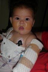 Katelyn Lambert receives treatment as a baby.