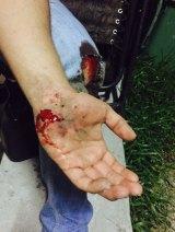 Zijah Haider's injured hand.