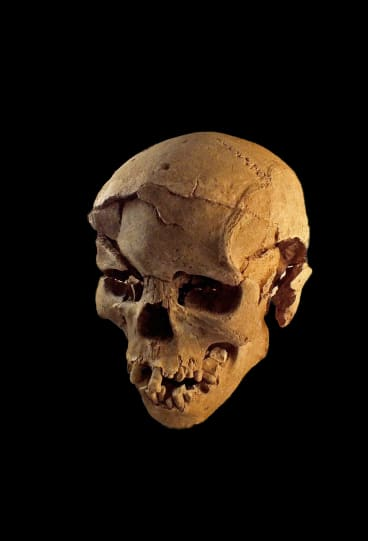 "Another skull found at the site, also male, with ""multiple lesions ... consistent with wounds from a blunt instrument""."