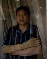 Injured: Chinese migrant Andy Zhang, whose arm was mangled in a work accident.