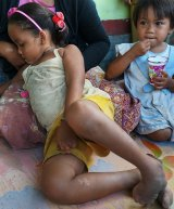 Saskia, aged six, at home in Sekotong village. She was born with deformed hands and feet.