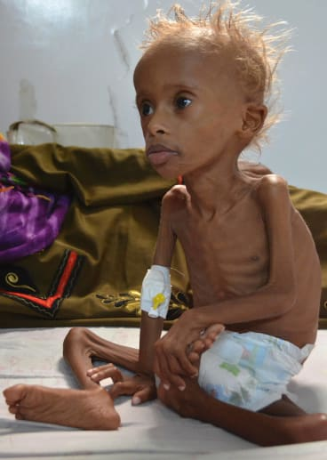Salem, 5, who suffers from malnutrition, sits on a bed at a hospital in the port city of Hodeidah, southwest of Sanaa, Yemen, in September.