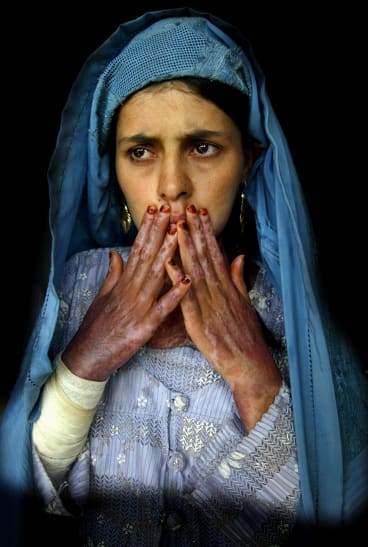 Paula Bronstein's 2004 image of Masooma, 18, who has severe burns on 70 per cent of her body from self-immolation.