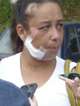 Local resident Priscila Monteiro Isabels was injured in the disaster.
