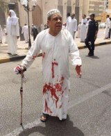 A man in a blood-soaked dishdasha after the attack.