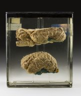 A horse brain from the Australian Institute of Anatomy's specimen collection, dated 1933.