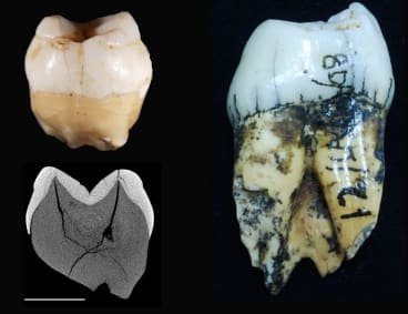 The incisor and molar discovered by Eugene Dubois in 1890.