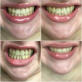 Catherine Bouris' teeth before, during and after using charcoal toothpaste. Top from L-R: Before April 8, April 23. Bottom from L-R: May 12, May 31.