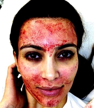 """Kim Kardashian shared this picture of her having a """"vampire"""" facial on Instagram, sparking increased demand for the procedure."""
