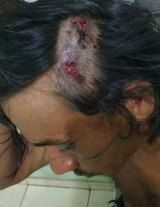 Kumtum Akroa-Gamella sustained injuries to his hand and head as he tried to escape his attackers.
