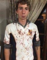 Rhun Ward Suerz, whose nose was broken during the bus fight.