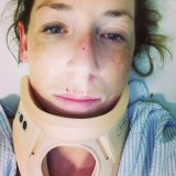 """Cyclist Anne Marie Cooke was injured by another rider taking part in the notorious ''Hell Ride"""" along Beach Road, Mentone."""