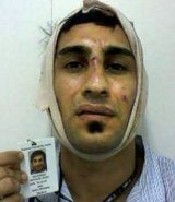 Bandaged. An injured detainee.