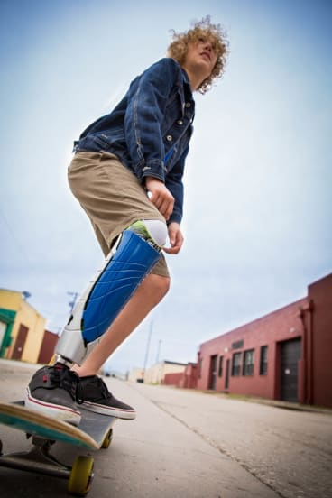 UNYQ uses 3D printing to customise prostheses.