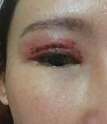 Ms Chen's eye after the botched surgery.