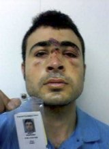 Lost soul: A detainee is pictured with his injuries suffered on Manus Island.