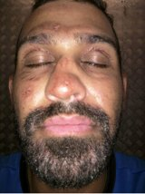 Mr Afravi suffered minor burns to his face after he tried to self-immolate about five weeks ago.