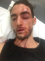 Isaac Keatinge needed 15 stitches following the attack.