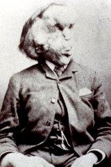 "Joseph Merrick, Victorian England's famous ""Elephant Man""."