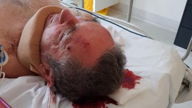 Jim Dodrill in the PA Hospital after the attack on Sunday.
