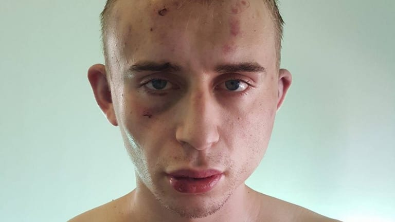 Dylan Souster, 22, suffered cuts, bruising and swelling to his face and body.