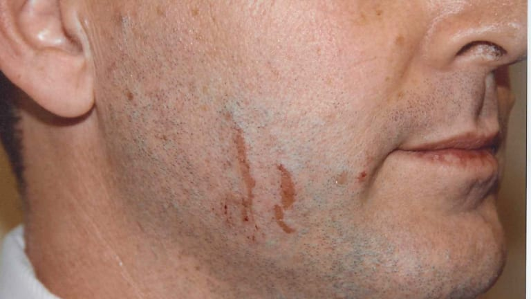 The marks on Gerard Baden-Clay's face.