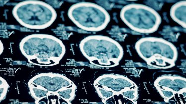 If one part of the brain is injured, the right hemisphere may overcompensate, leading to an increased focus on maths and the arts, US psychologist Joanne Ruthsatz says.