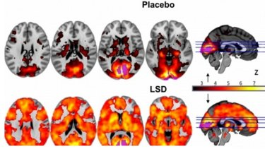 This image shows how, with eyes-closed, much more of the brain contributes to the visual experience under LSD than under a placebo.