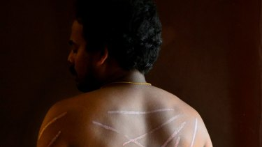 Tamil asylum seeker shows his wounds from being tortured.