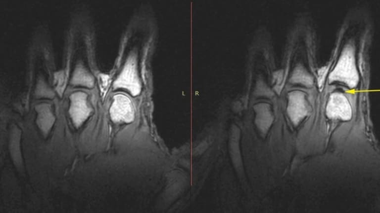 Researchers have used MRI to see what happens when a knuckle cracks.