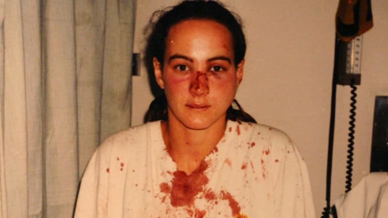 Corina Horvath in hospital after the police raid on her home in 1996.