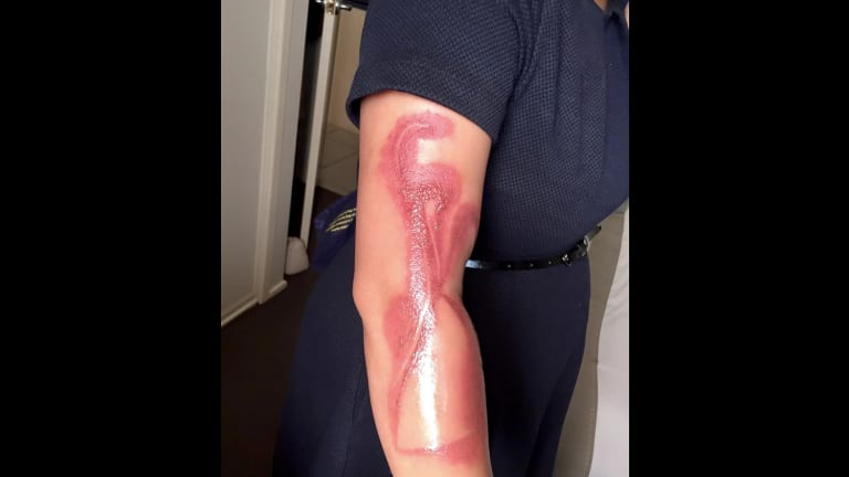 Melanie Tan Pelaez posted a picture online showing burns received after falling asleep on her charging iPhone 7.