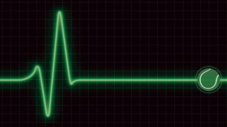 Atrial fibrillation is an irregular heartbeat and it can cause ischaemic stroke.