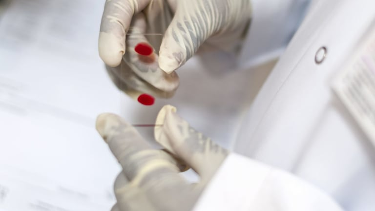 Theranos developed blood testing technology using a fingertip pin-prick instead of a needle and syringe.